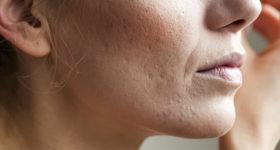 Photo d'une femme de 50 ans et plus avec acné sur le visage