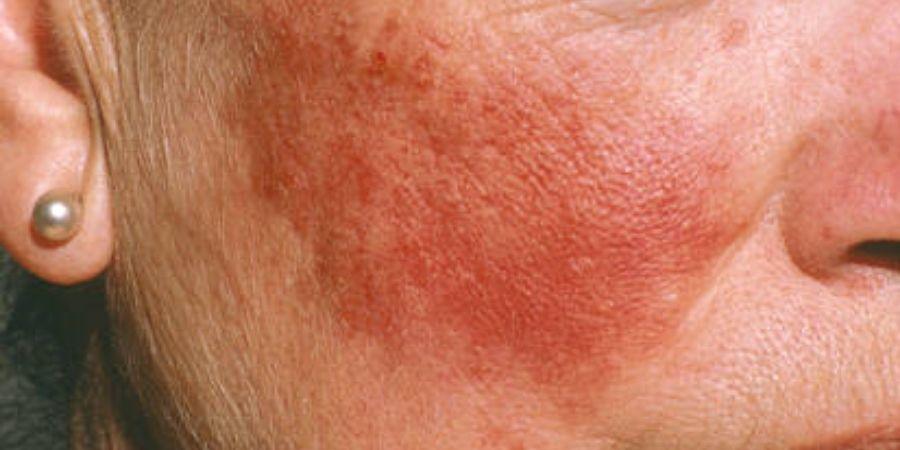 l'acné rosacée