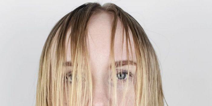 cheveux gras